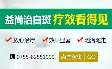深圳著名的白癜风医院